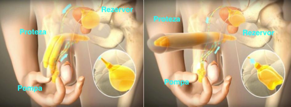 Ingrosare de penis (Faloplastie)   Dr. Florin Juravle