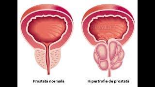 afectează prostata erecția