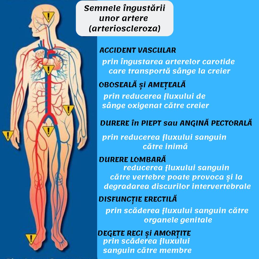 Disfuncția erectilă – cauze si tratament – formatie-de-nunta-coral2.ro