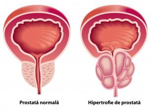 tratamentul prostatei și erecția
