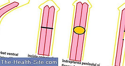 Care este lungimea normală a penisului? Un nou studiu spulberă mitul celor 17 cm - formatie-de-nunta-coral2.ro