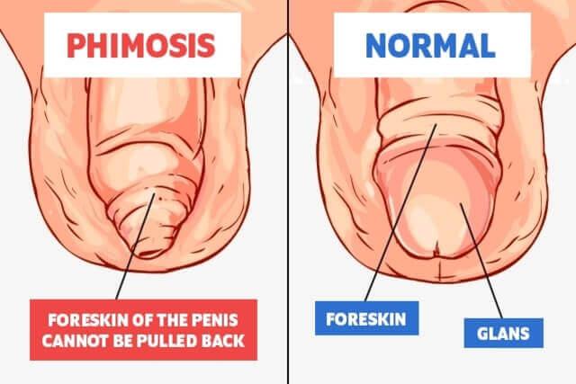 tratament după operația penisului