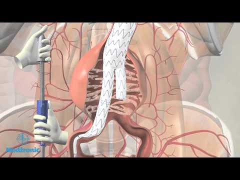 masajul prostatei ajută la erecție