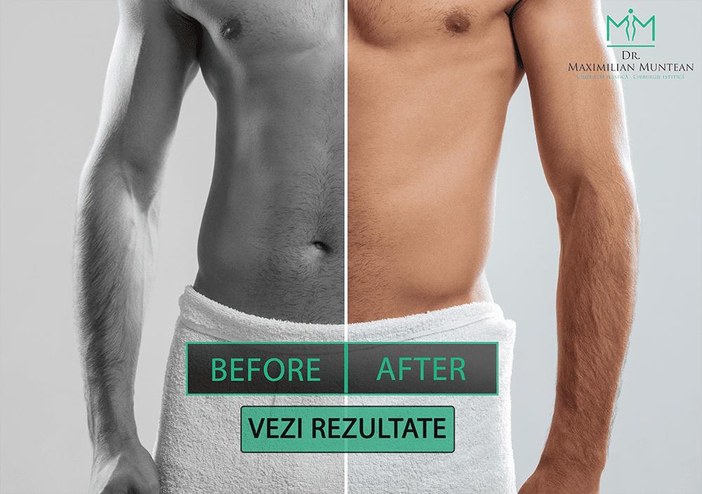 chirurgie de mărire a penisului masculin tinctură de îmbunătățire a erecției