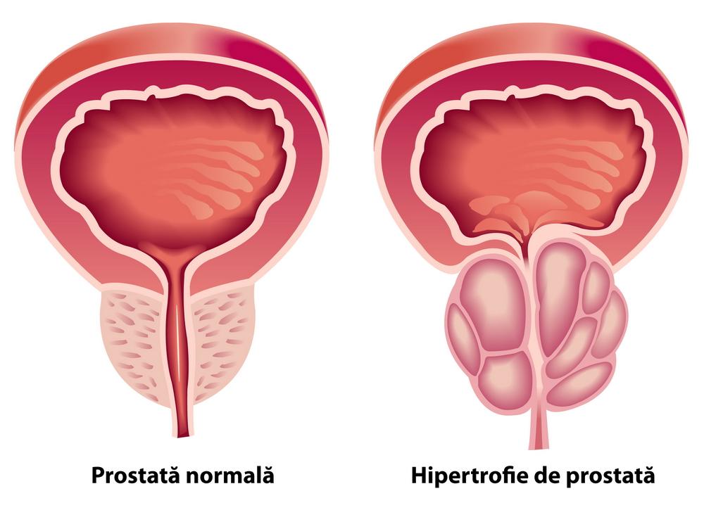 scăderea erecției din cauza prostatei rețete pentru erecție