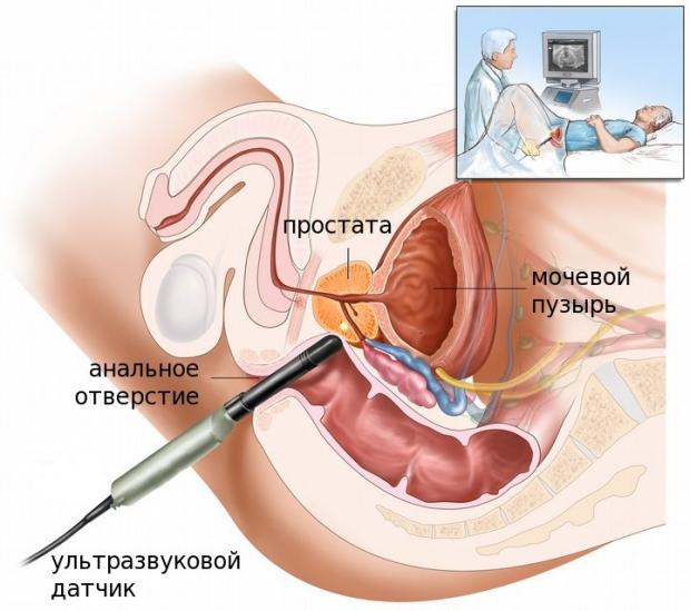 Viața intimă după îndepărtarea glandei prostatei