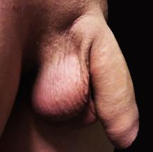 penisul la bărbați crește până la
