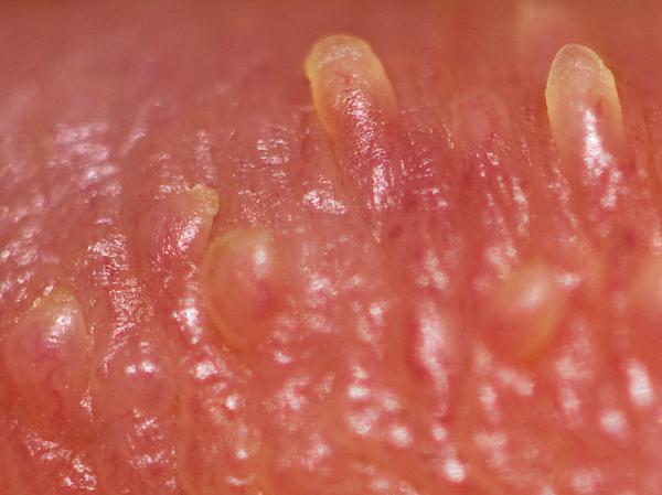 boli genitale în penis sfeclă roșie pentru o erecție