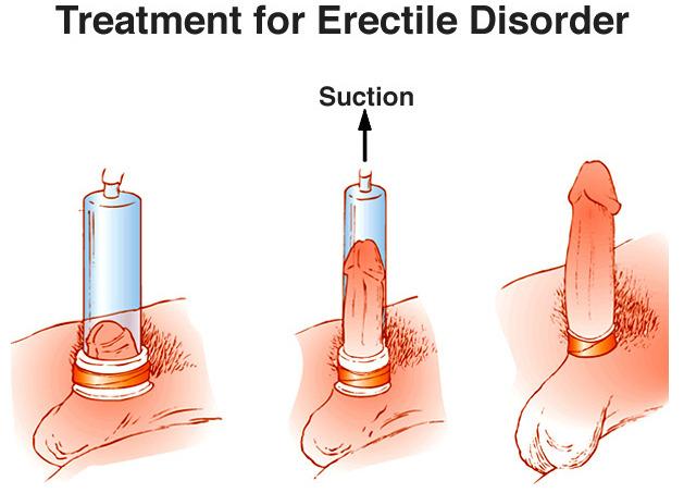 probleme de erectie cu erecția înainte de ejaculare dispare