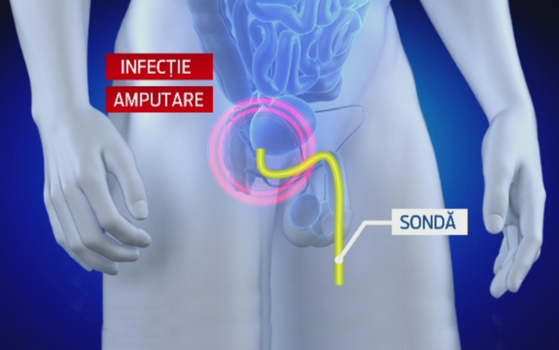 transferuri despre penis
