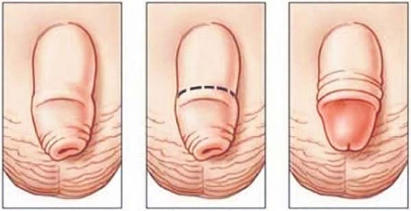 penis masculin mic penis câte tipuri