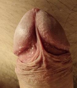 erecție la împingere kegel exercitarea erecției