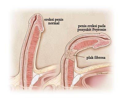 penis strâmb la un bărbat penis improvizat