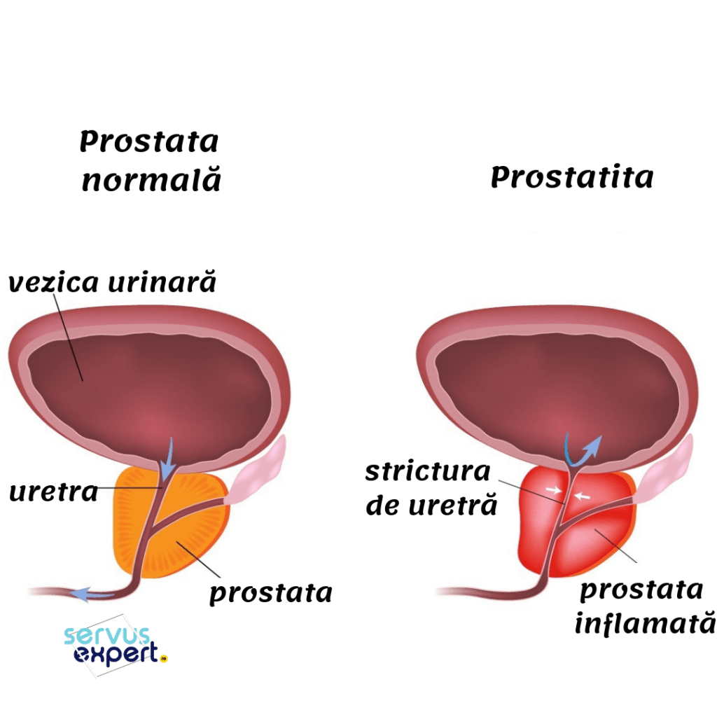 erecție matinală și prostatită cronică