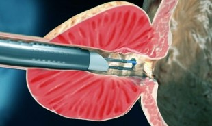 Intervenția chirurgicală
