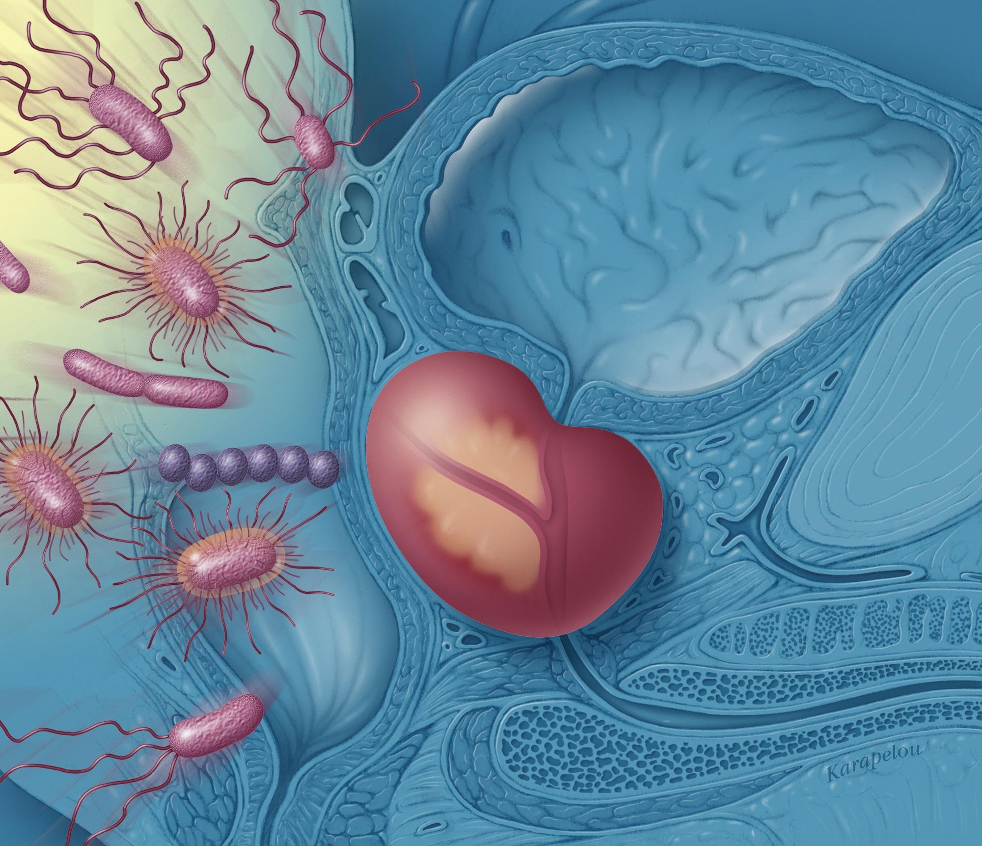Simptomele bolilor inflamatorii intestinale și efectul lor asupra vieții sexuale