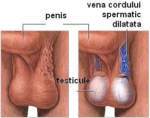 mărirea testiculelor și a penisului penis masculin în grăsime