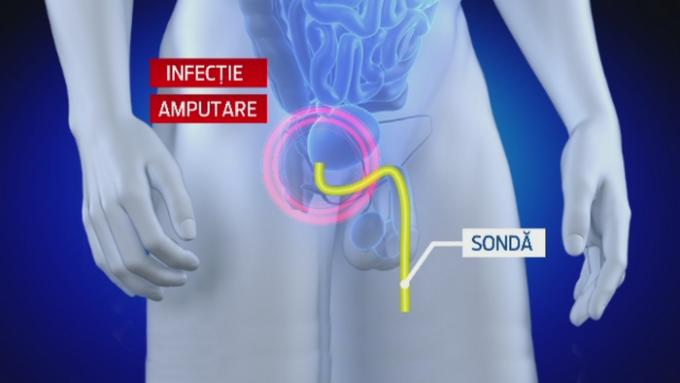 omul își arată penisul
