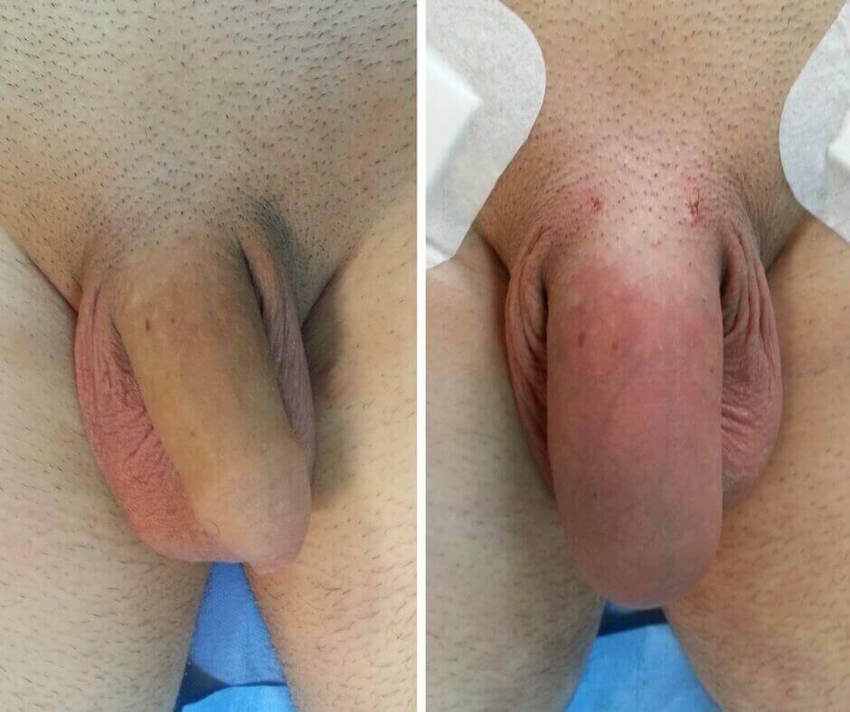 penis după operația de mărire