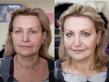 refacerea erecției după 52 de ani