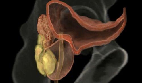 refacerea erecției după chimioterapie