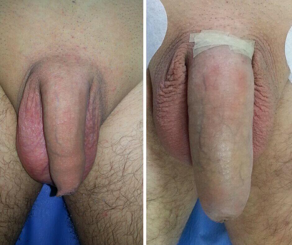prostatită de erecție incompletă având o erecție de către bărbați