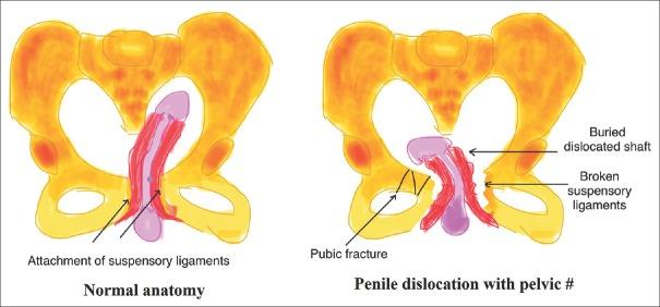 penis dislocat