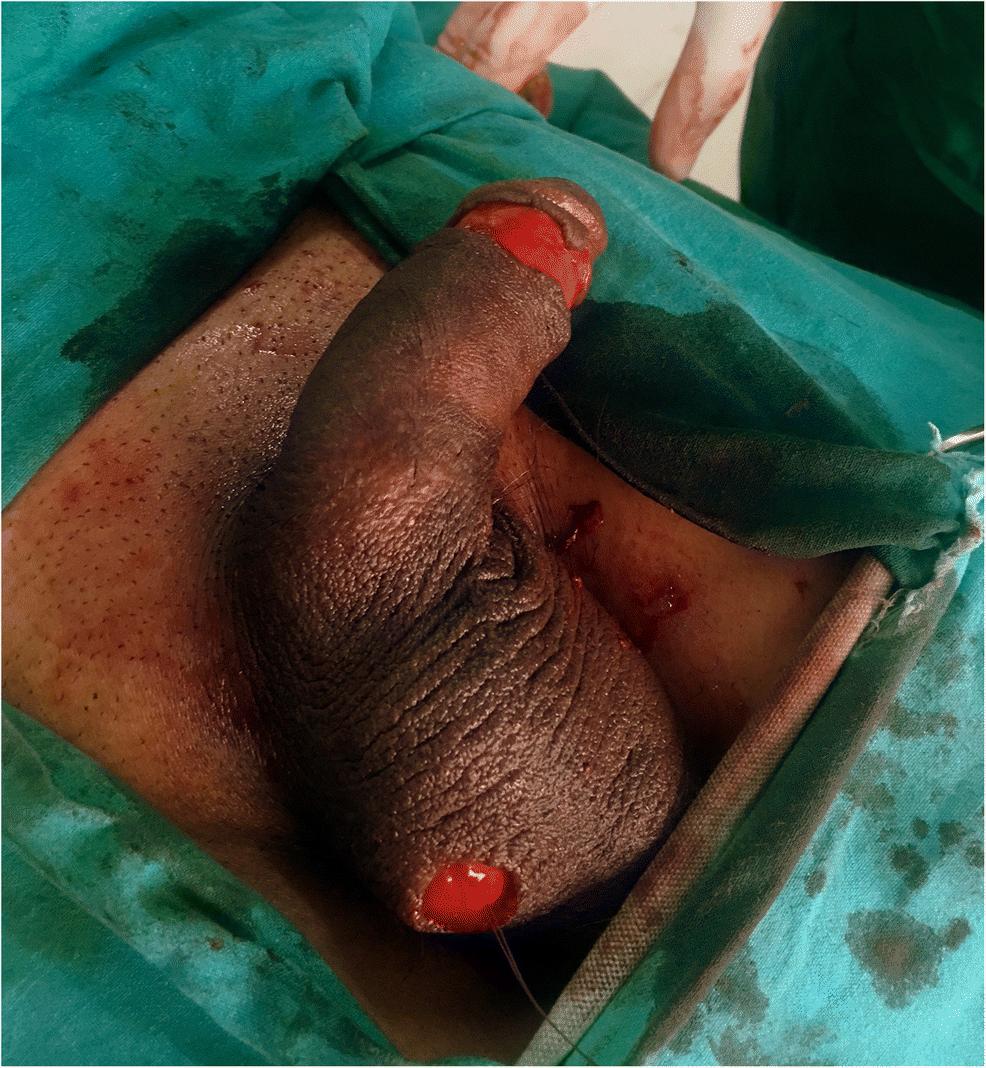 Atentie la penis! Se poate fractura… - CSID: Ce se întâmplă Doctore?
