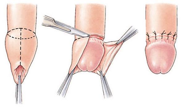 penisuri mici în stare de erecție în timpul unei erecții, testiculul se retrage